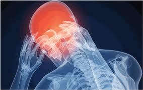tratamiento para la cefalea